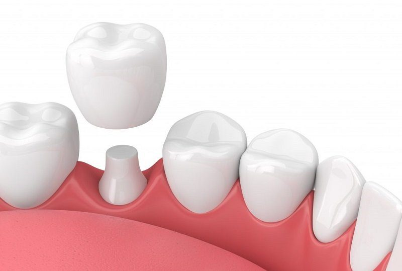 Dental Crown Treatment