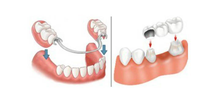 Dental Bridge Vs Partial Denture